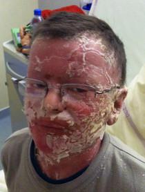 Vue du visage pendant sa toxidermie due à la mise en place d'une crème contenant des corticoïdes. Dans la littérature médicale les corticoïdes sont à proscrire.