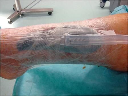 Application de TPN à l'ulcère de pied diabétique (Visuel Vivano®)