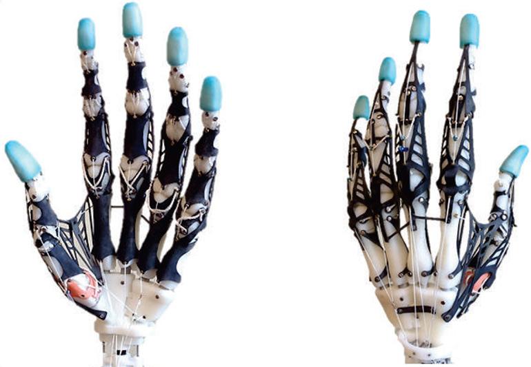 UW-prosthetic-hand